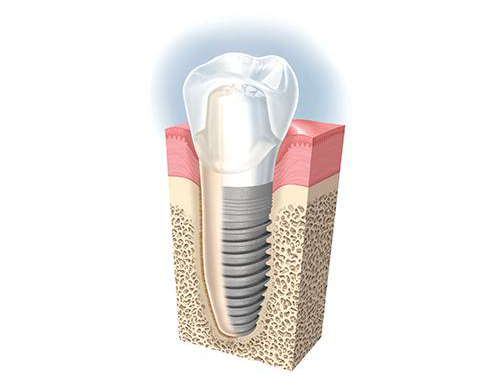 implant_dentaire_presentation