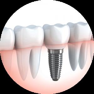 une_dent_implant_presentation