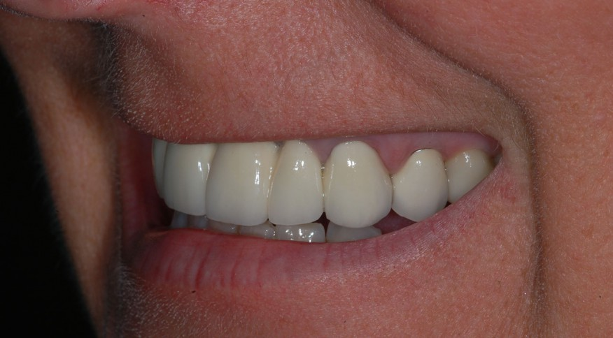 Murielle H. 40 ans. Pont de 6 dents sur implants - Après traitement