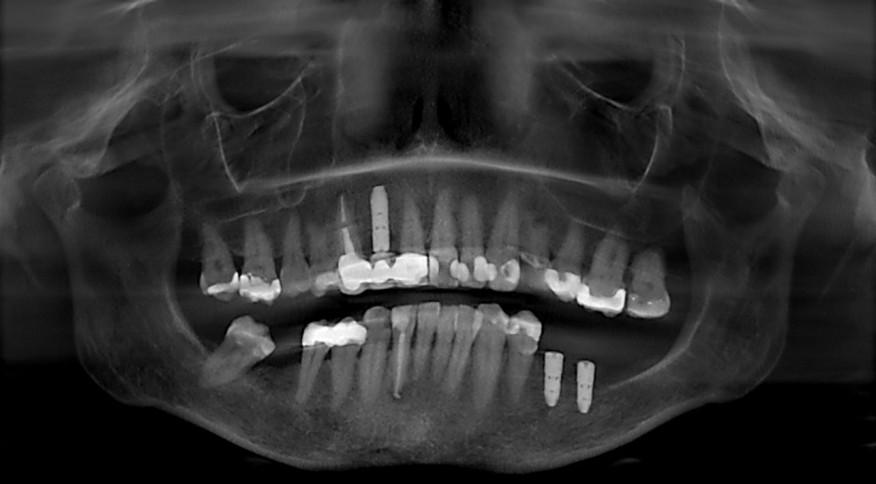 Radiographie - Couronnes - Michèle G, 57 ans. Dents unitaires sur implants.