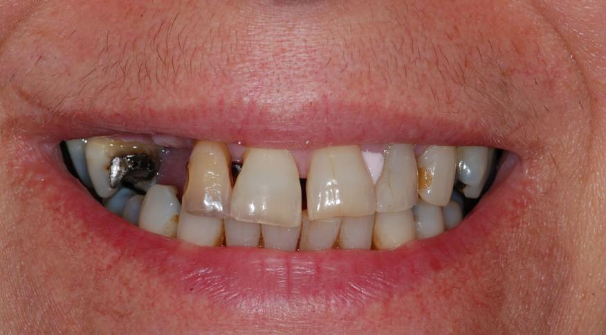 Geneviève, 50 ans. All-on-4 (prothèse fixe sur implants dentaires) - Avant traitement