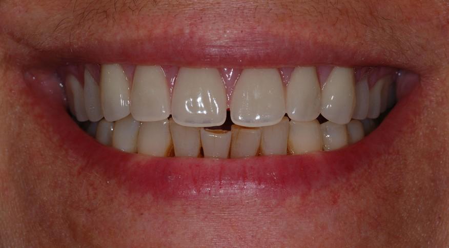 Geneviève, 50 ans. All-on-4 (prothèse fixe sur implants dentaires) - Après traitement
