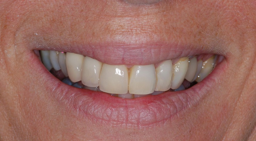 Michèle G, 57 ans. Dents unitaires sur implants. - Couronnes - Après traitement