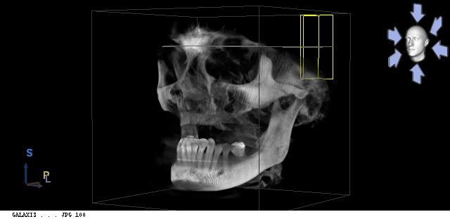 Scan 3D - Yvette C., 63 ans. Prothèse complète sur implant