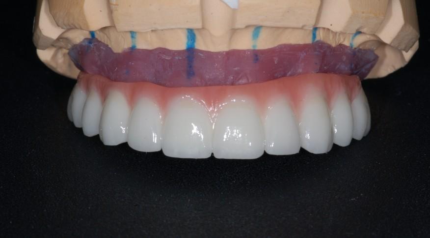 prothèse fixe sur implants dentaires.