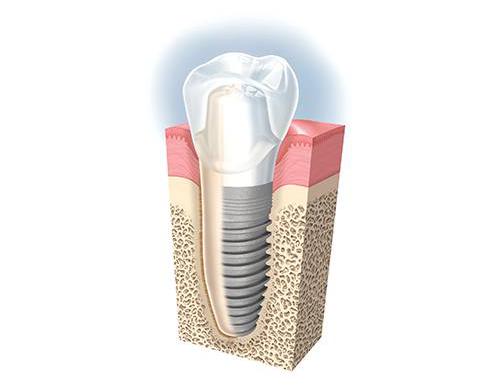 implant_dentaire_presentation