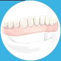 implants-image1