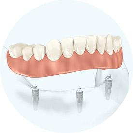 allegro implants dentaires
