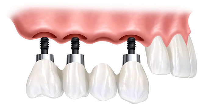 allegro implants dentaires