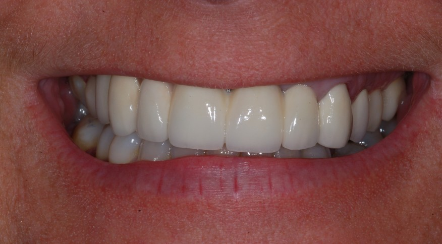 Murielle H. 40 ans. Pont de 6 dents sur implants - Avant traitement