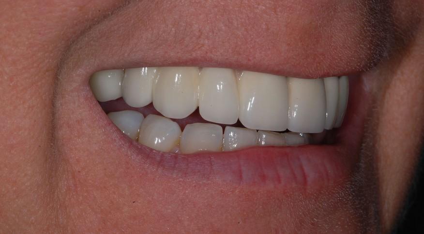Murielle H. 40 ans. Pont de 6 dents sur implants dentaires - Après traitement