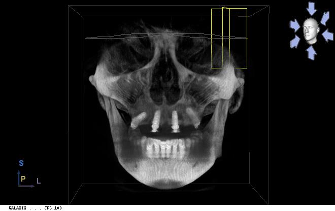 Scan 3D - Impant dentaire avec méthode All-on-4. - Geneviève, 50 ans (prothèse fixe sur implants dentaires)
