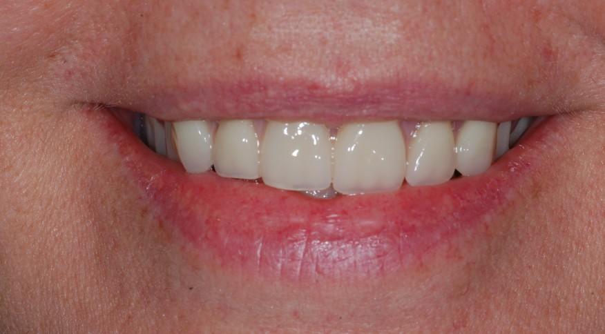 Scan avec implants - Angèle, 54 ans. Prothèse fixe du haut sur 6 implants dentaires