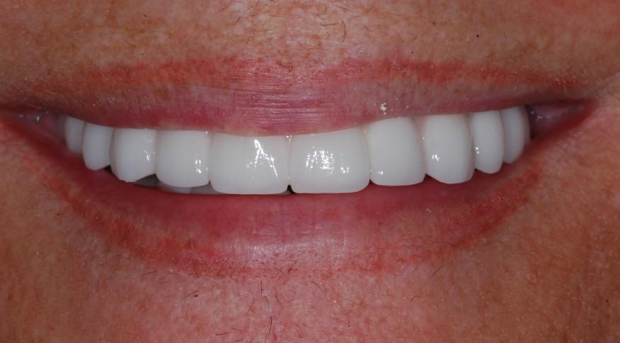 Prothèse fixe sur implants tout porcelaine