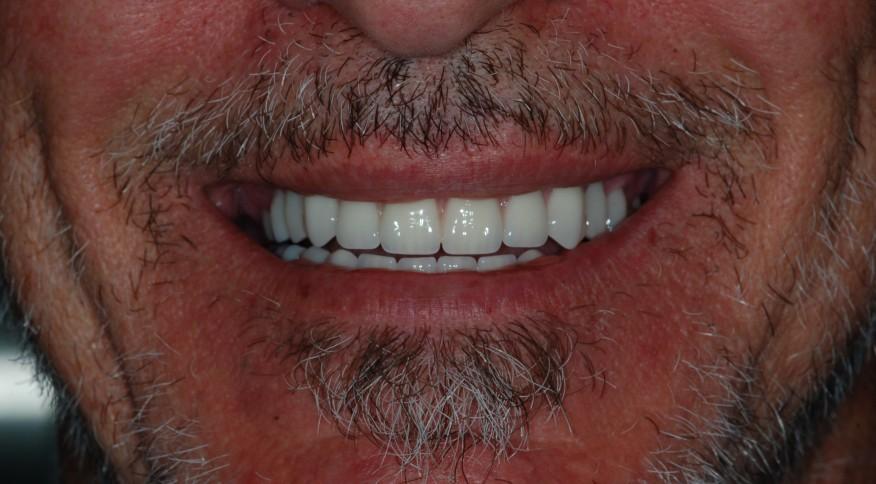 Photo des prothèses sur implants dentaires