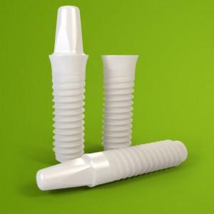 Implant dentaire en porcelaine blanc.